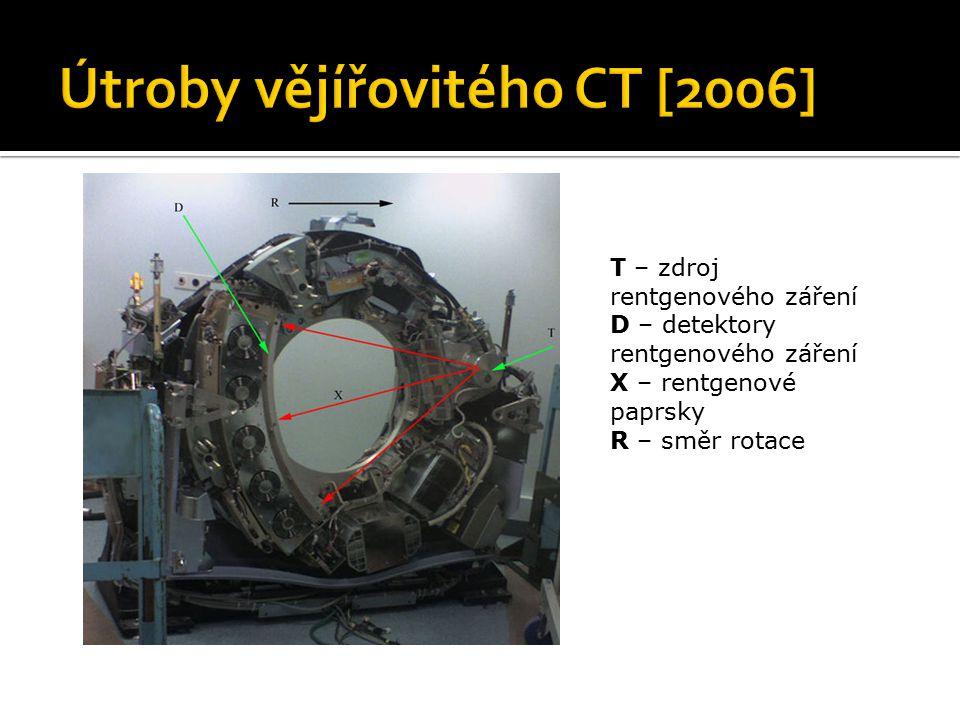 Útroby vějířovitého CT [2006]